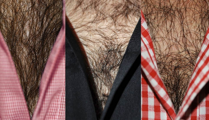 Chest Hair. Everywhere. You're Welcome?