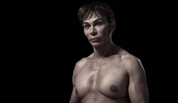 Portraits Of Extreme Plastic Surgery (NSFW)