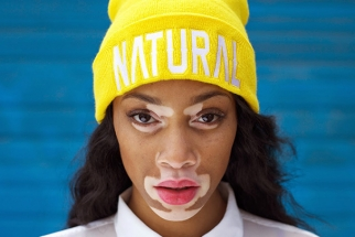Woman with Vitiligo Proves Bullies of her Past Wrong as She Turns Top Model