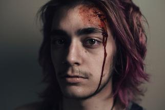 Portrait Series 'Damages' Showcases Jarringly Realistic Trauma, Left Open to Viewer's Interpretation
