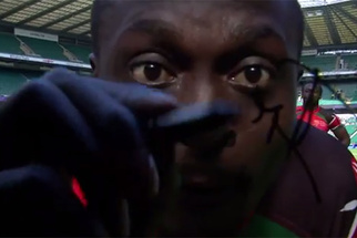 How One Rugby Player Ruined a $94,000 Camera Lens with a Black Pen