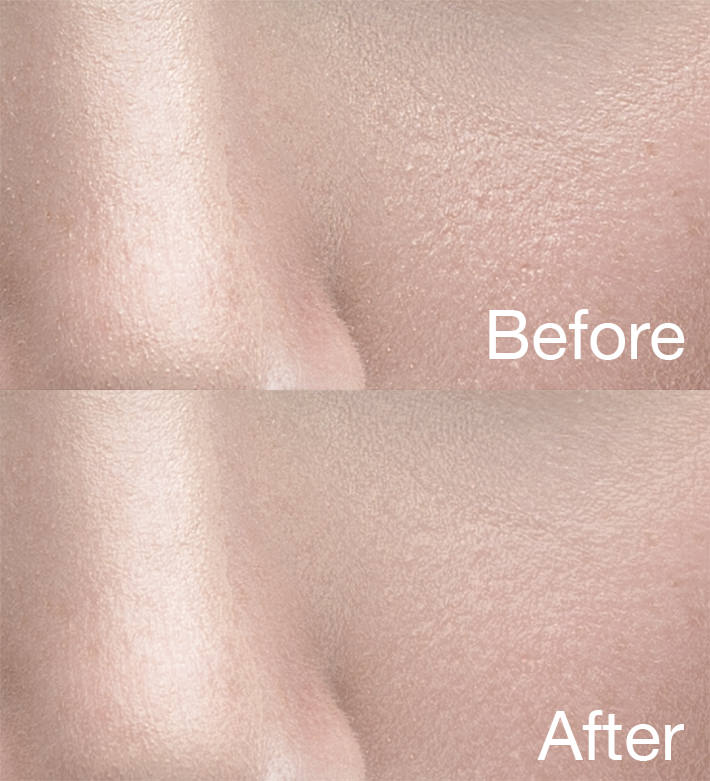 Fstoppers-Woloszynowicz-Smoothing-Skin-Texture-Before-After